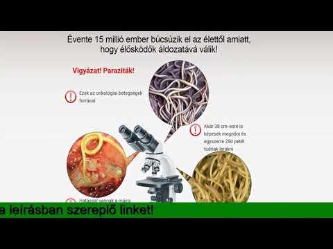 az emberi ostoriféreg fejlődési ciklusa)