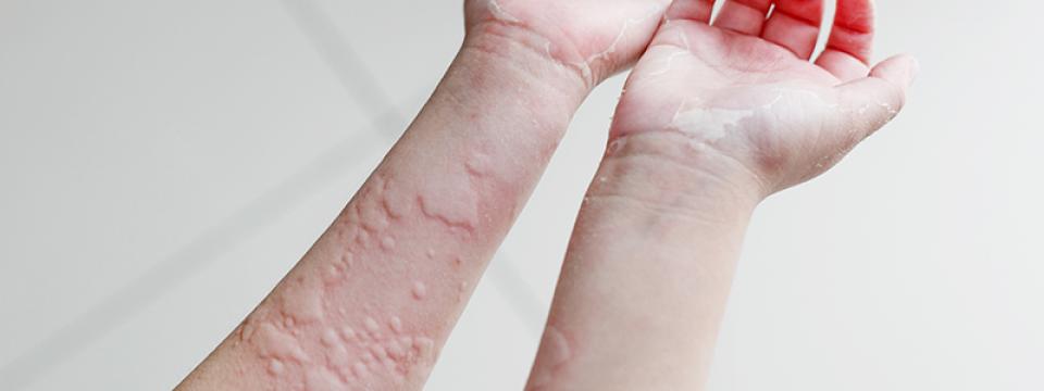 Mi az allergiás rhinitis, a szénanátha?