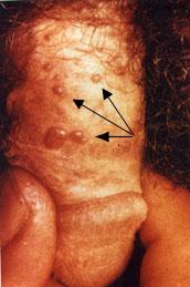 condyloma a fityma