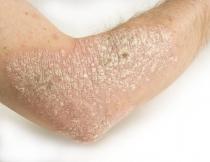 az enterobiosis feltárása