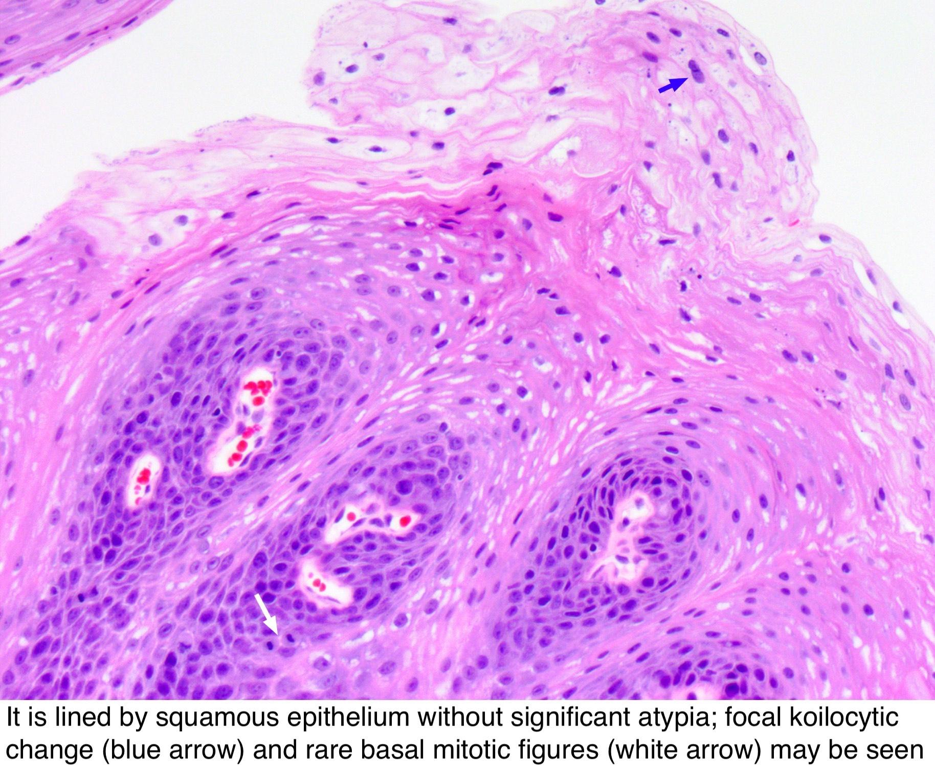Prosztata adenoma kóros anatómiája