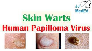 A bőrgomba típusai és főbb tünetei A bőr parazitálja az emberek tüneteit