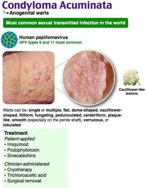 nőstény papillomavírus