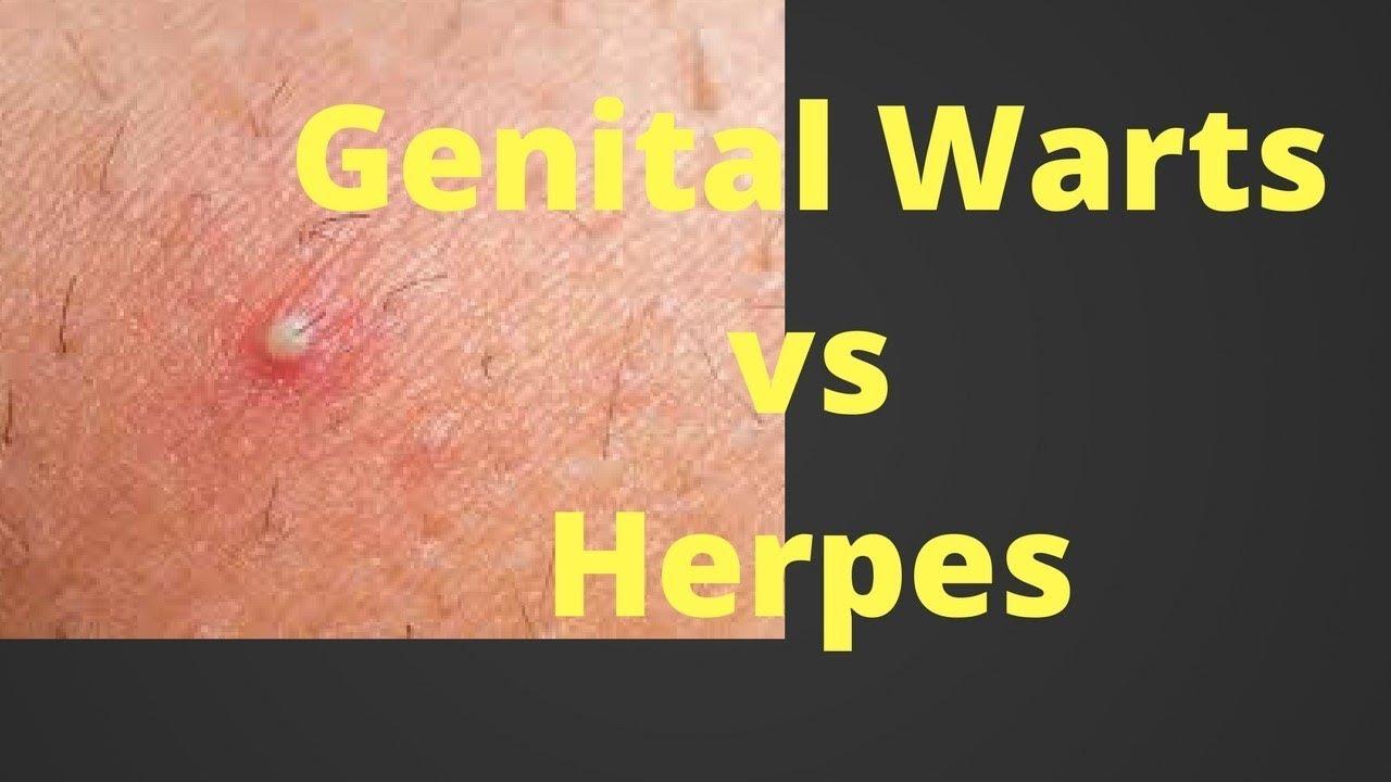 hpv virus same as herpes)