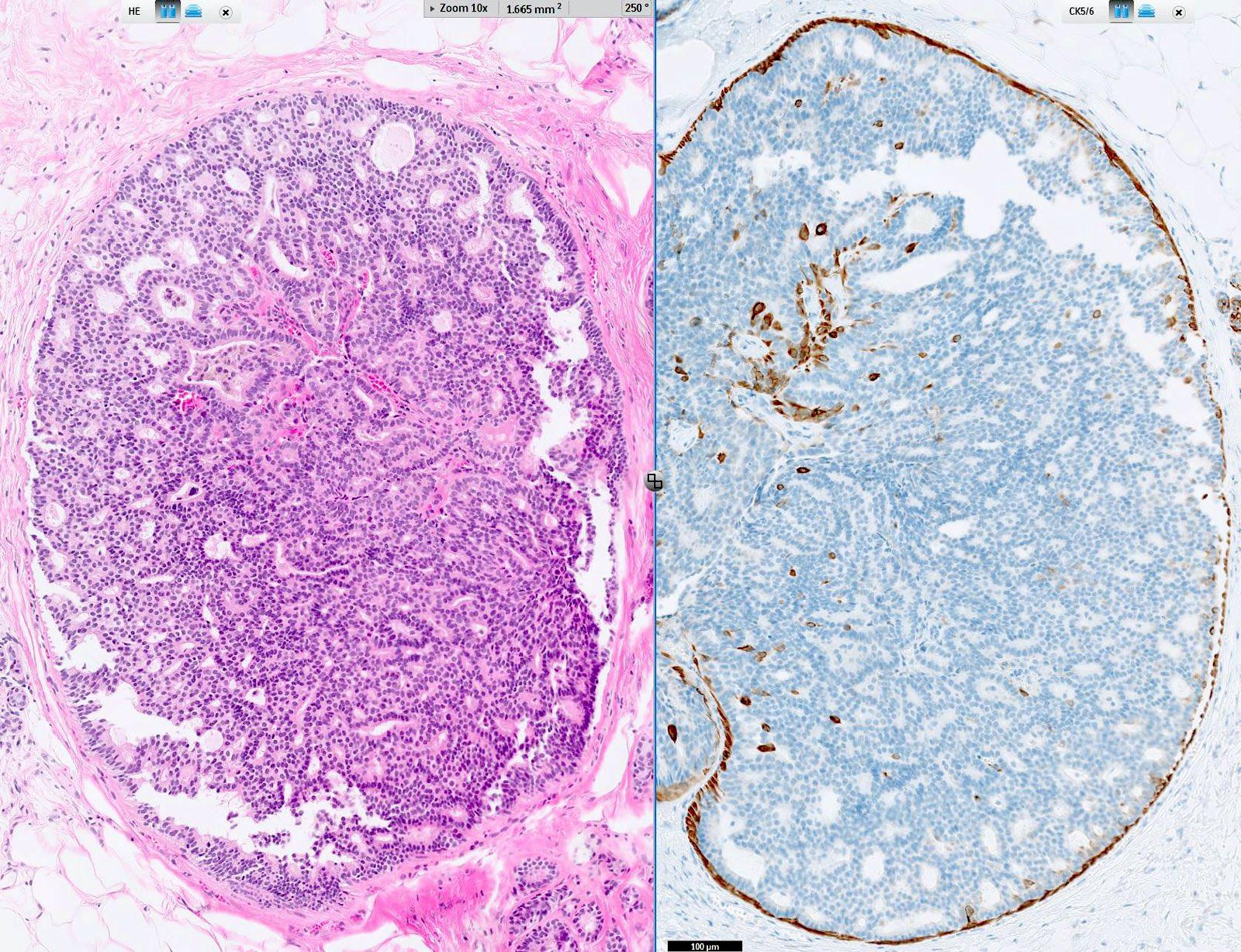 intraductalis papilloma histo)