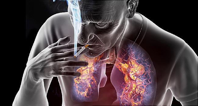 A tüdőrák gyógyulási esélyei Magyarországon - HáziPatika