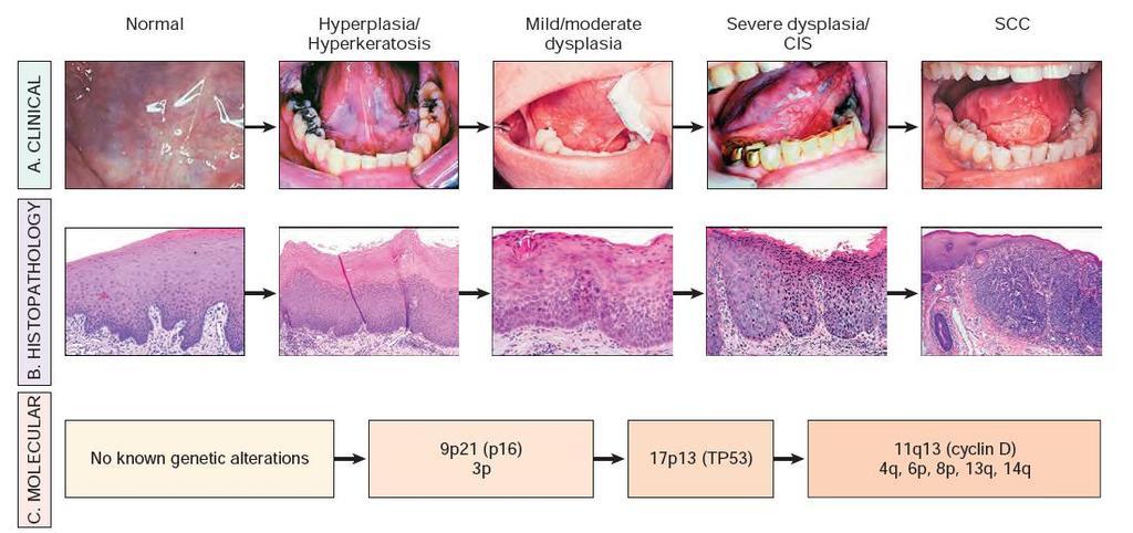 A HPV oltás korai petefészek kimerülést (menopauzát) okozhat?