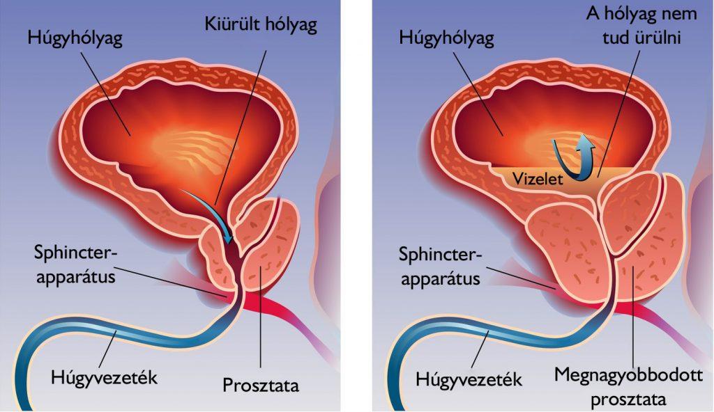 ha a condyloma nyelvén a szem papilloma vírusa