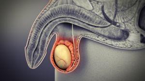 nem hormonális rák 7 méregtelenítő étrend-kiegészítő