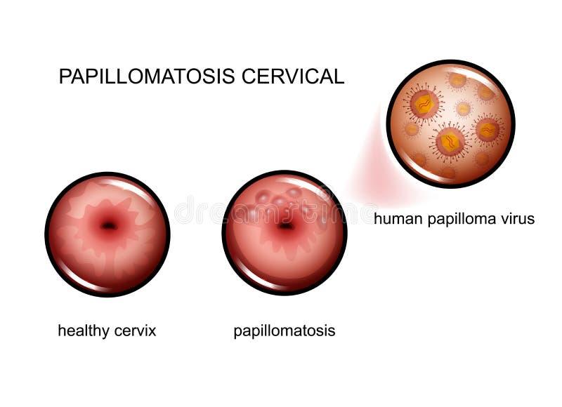 humán papillomavírus b)