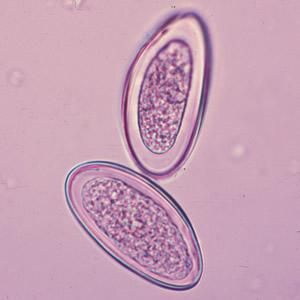 enterobius vermicularis gazdaszervezet)