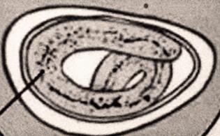 enterobius vermicularis királyság filo osztály