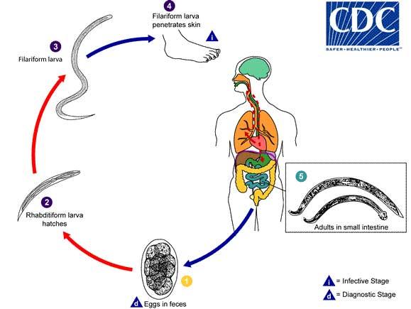 Emberi pinworm fejlődési ciklus - Pinworms: mik azok és milyen tünetek - Gyomorhurut