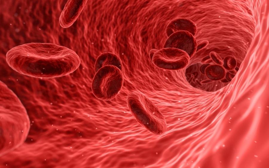pinworms kezelés fokhagymával genitális pikkelyes papilloma kezelés