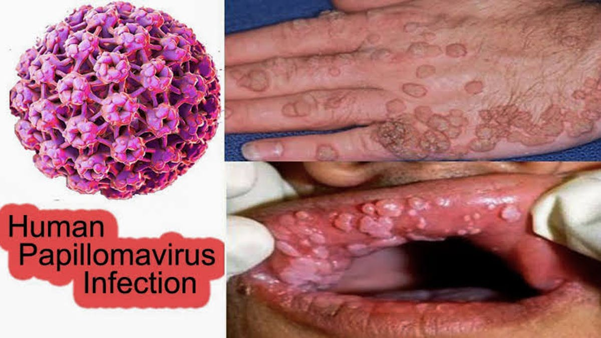 papilloma és vírus