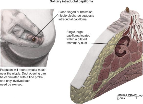 Mi is az a HPV fertőzés? Hogyan ismerhetjük fel és kezelhetjük?
