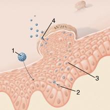 egységek papilloma és condyloma kezelésére