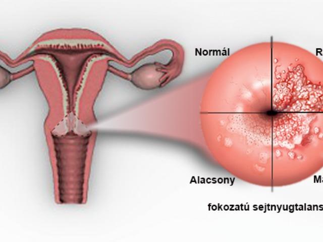 papilloma vírus egy nőnél