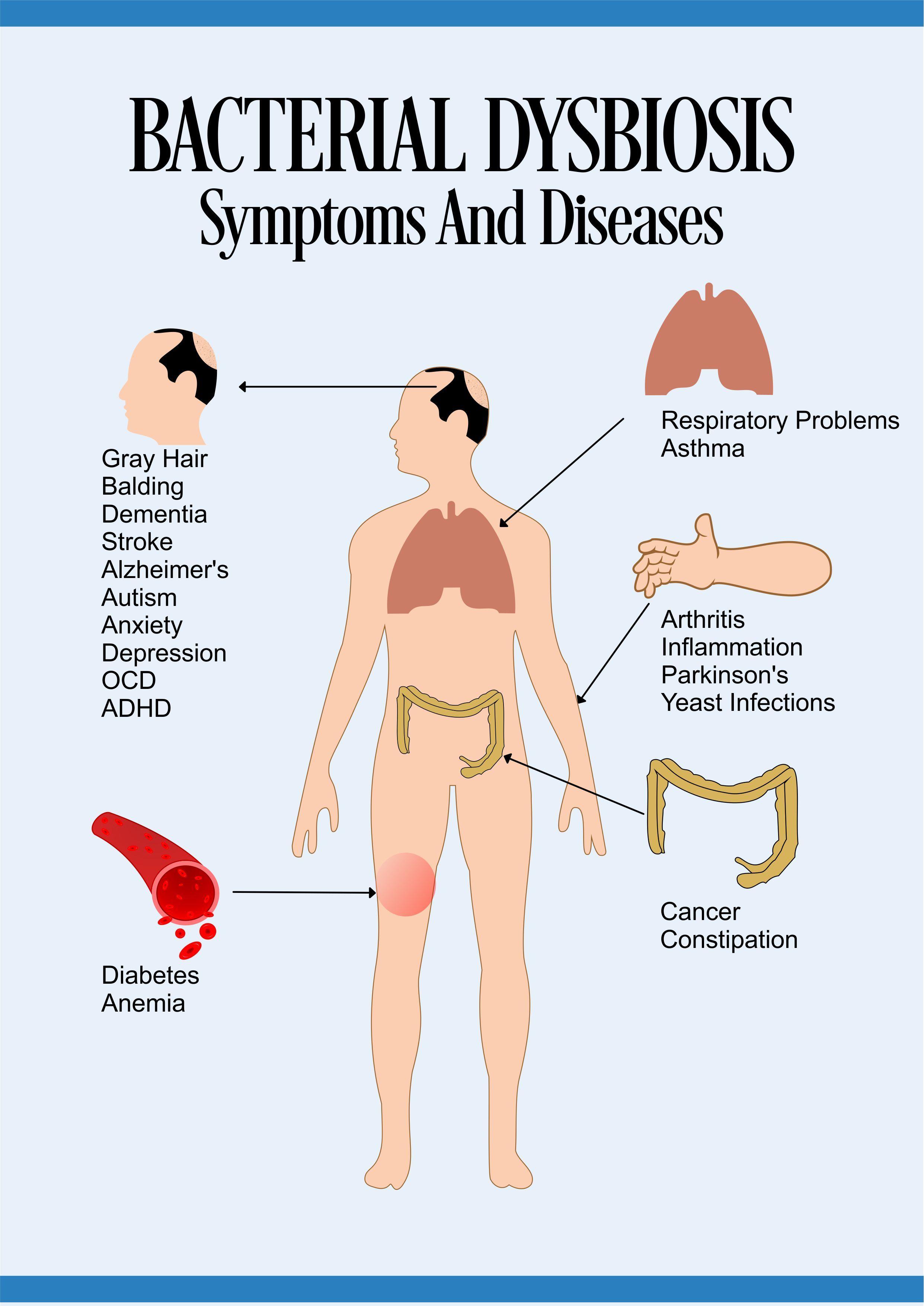 Kontaminált vékonybél vagy Candida? - Egyéb