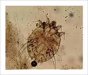 paraziták tünetei az emberek kezelésében)