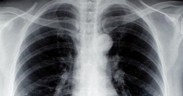 a tüdőrák gyógyul