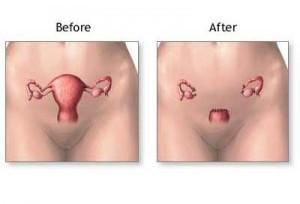peritonealis rák teljes méheltávolítás után mi a helmintmegelőzés
