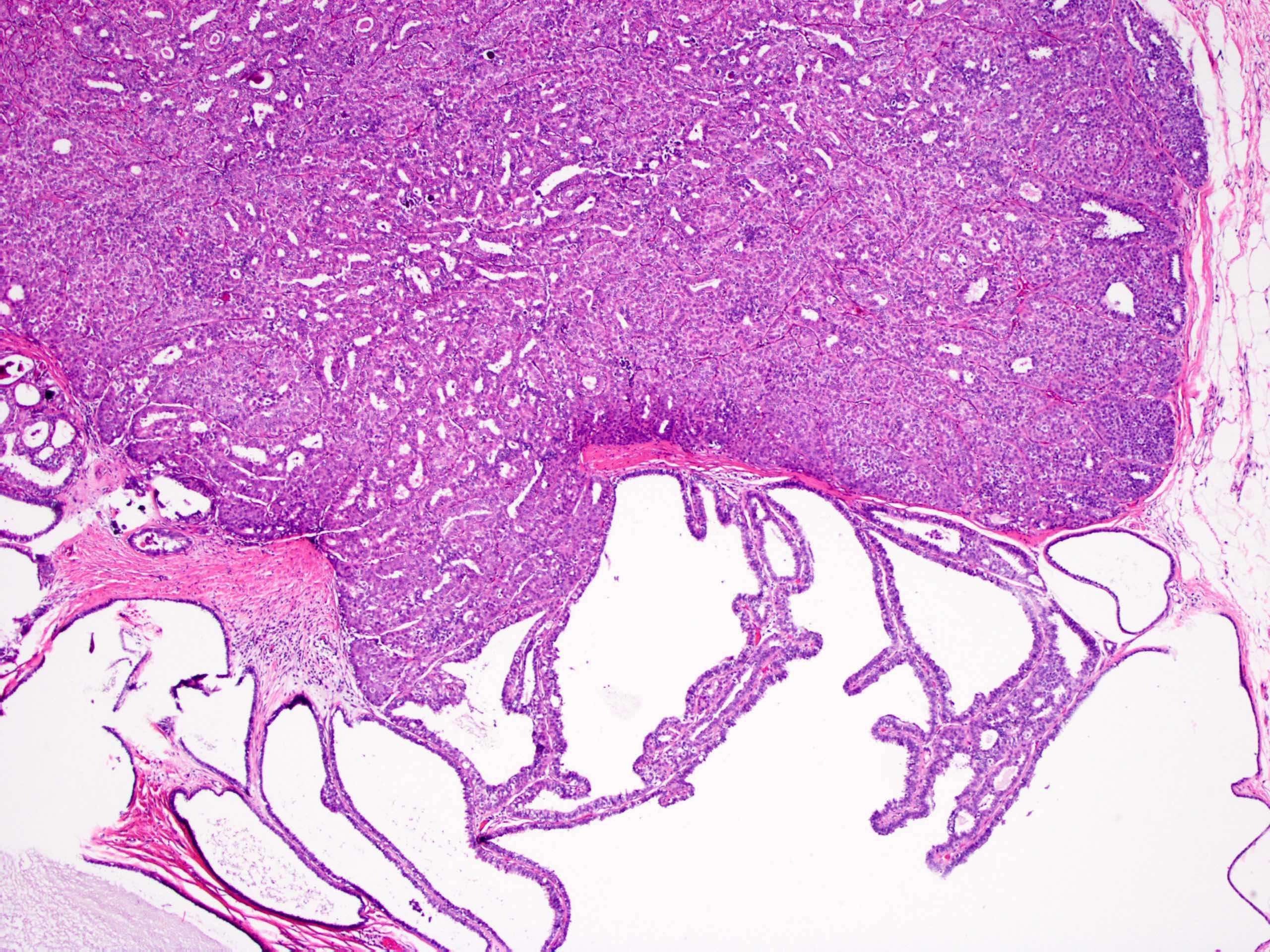 Emlő daganatok | Hungarian Oncology Network - gal-kuria.hu
