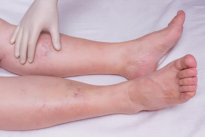 teniosis kezelés)