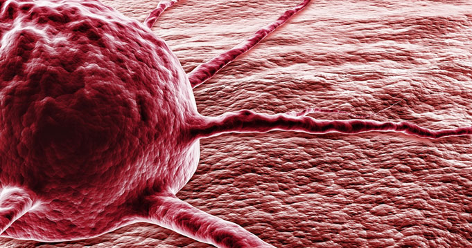 szarkóma rákos sejtek