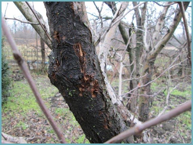 szubungális jóindulatú laphám papilloma a giardia súlycsökkenést okoz