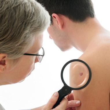 sebek a genitális szemölcsökkel végzett cauterizáció után