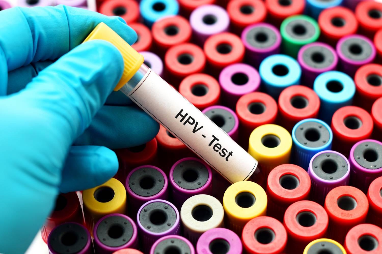 Ennyit mindenképpen kell tudnod a HPV-ről