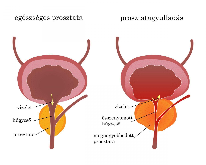 A prosztatarák korszerű kezelése   gal-kuria.hu