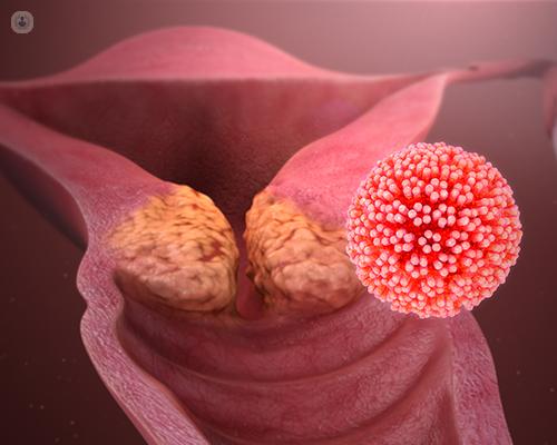 hpv papillomavirus italiano)