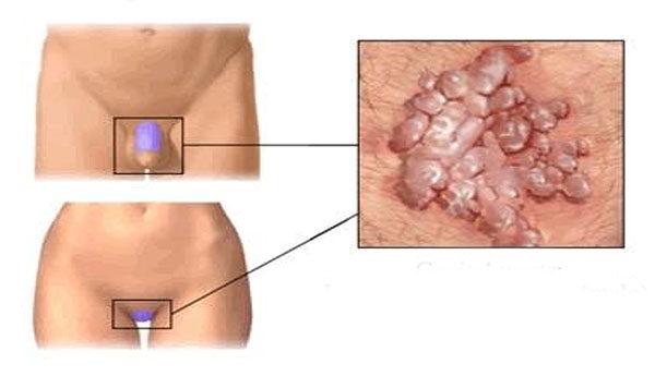 nyaki condyloma kezelése