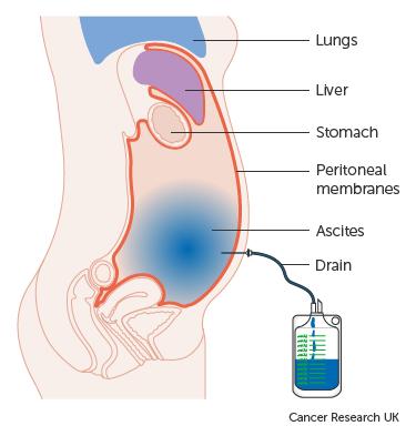 Kiterjesztett peritonectomia indikációja az onkológiában, Peritonealis pseudomyxoma rák