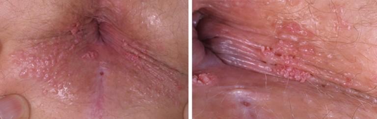 nemi szemölcsök a vulvában