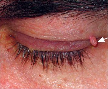 papilloma diagnózis