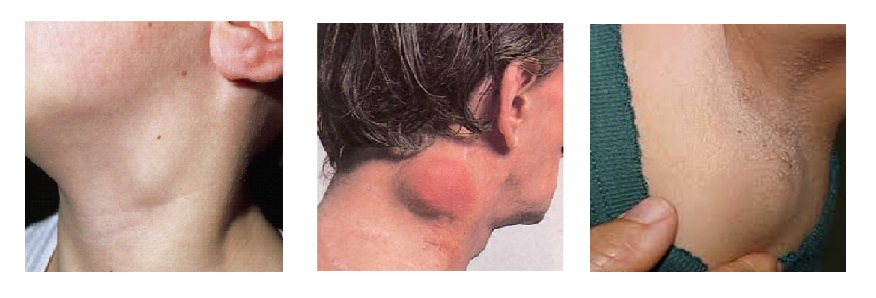 Hodgkin-rák tünetei