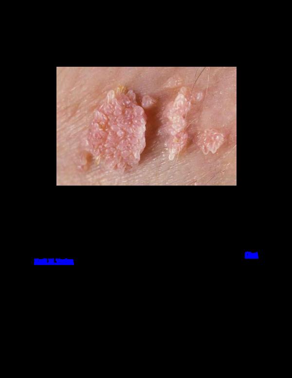 A krónikus mieloid leukémia molekuláris monitorozásának aktuális kérdései - PDF Free Download