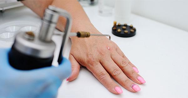 Vírusok a bőrben :: Szemölcsök - InforMed Orvosi és Életmód portál :: szemölcs, herpesz, mollusca