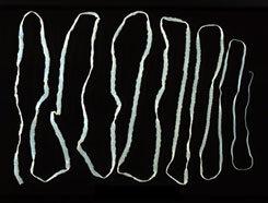 felnőtt galandféreg tünetei