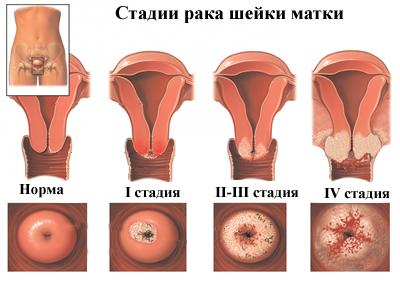 endometrium rákos történetek