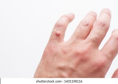 VÍRUSOS SZEMÖLCSÖK, Szemölcsök a kézen gyógyítanak