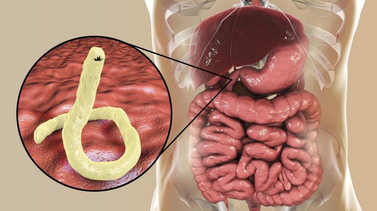 a parazita kód átadja a tüneteket)