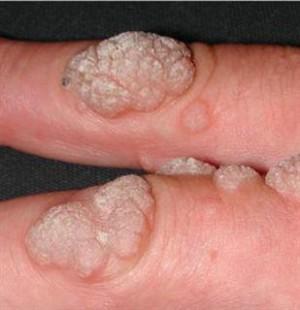 erkeklerde humán papilloma vírus tedavisi