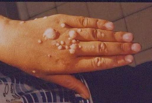 humán papilloma genitális vírus