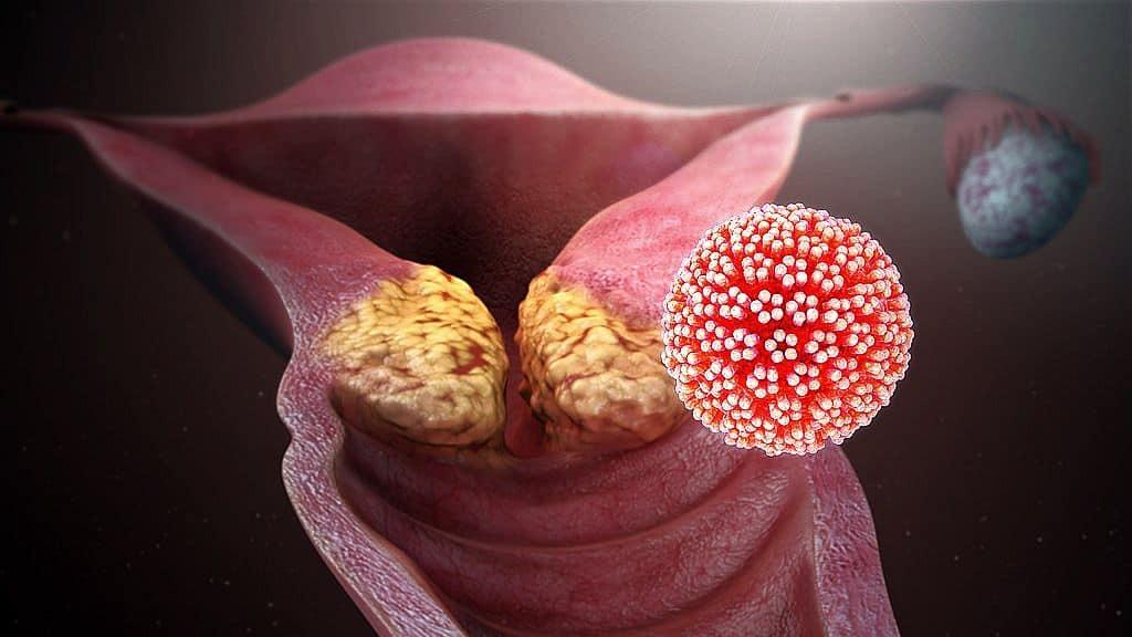 papilloma vírus egy nőnél)