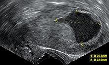 váladék az endometrium rákból