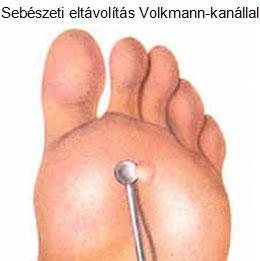 Szemölcsök, bőrkinövések eltávolítása gyerekekről - Dr. Körmendy Miklós